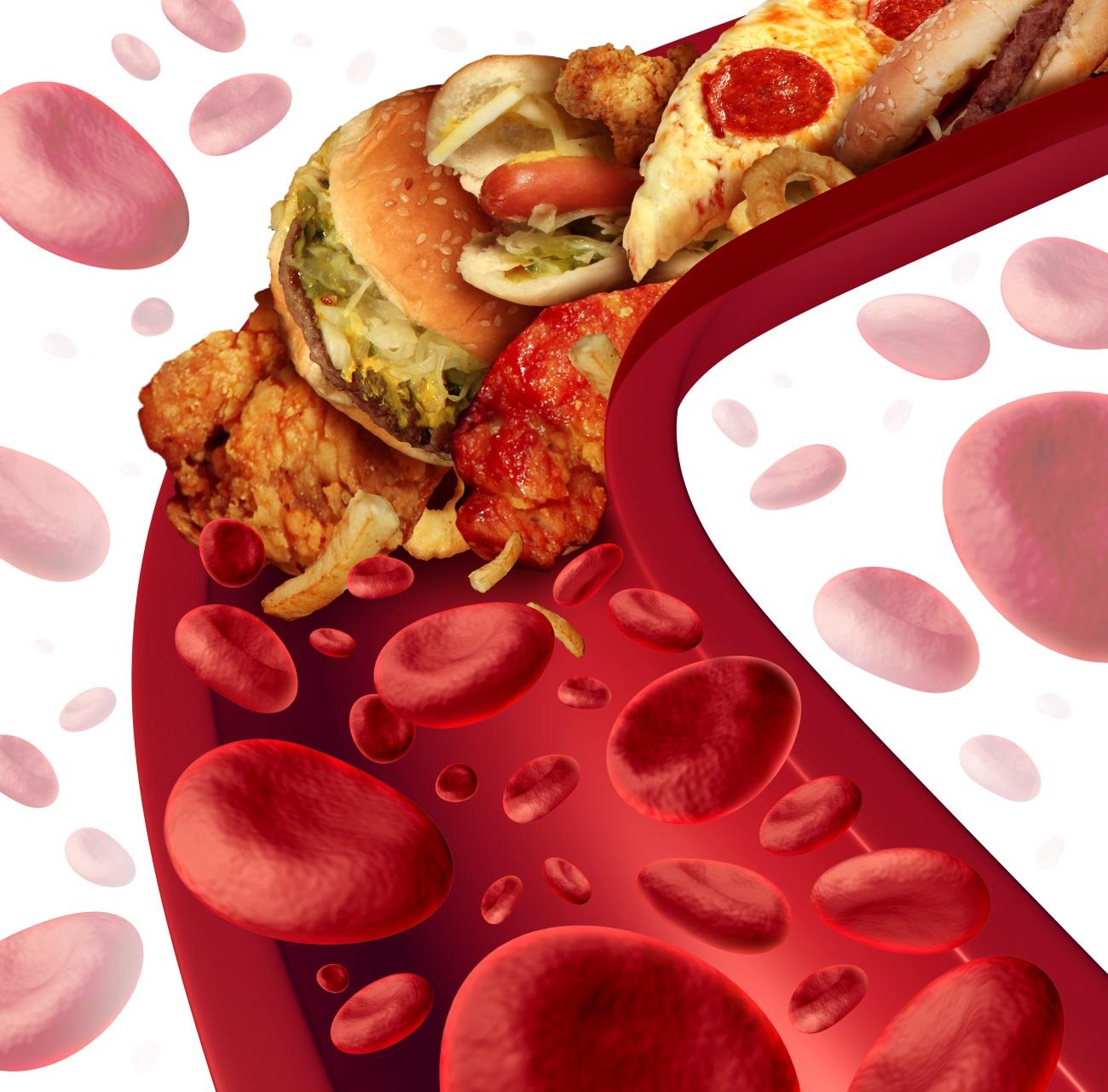 Acido bempedoico abbassa le LDL